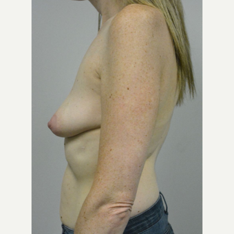 35-44 year old woman treated with Breast Implants before 3304591