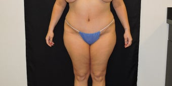 45-54 year old woman treated with Liposuction after 3331471