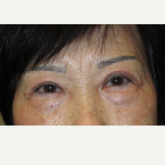 72 year old woman treated with Eyelid Surgery after 3054527