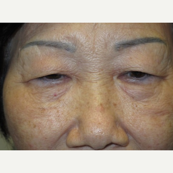 72 year old woman treated with Eyelid Surgery before 3054527