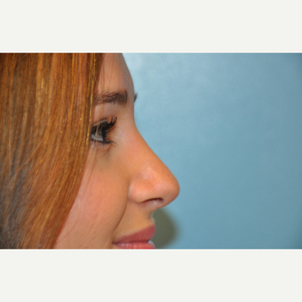 18-24 year old woman treated with Rhinoplasty after 3624838