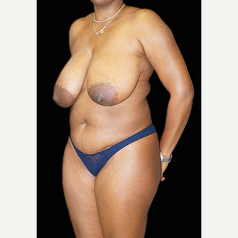 Breast Reduction and body contouring using liposuction before 3332939