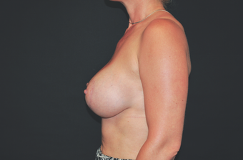 Inspira Breast Implants after 1515978