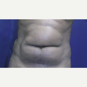 25-34 year old man treated with Tumescent Liposuction before 3148909