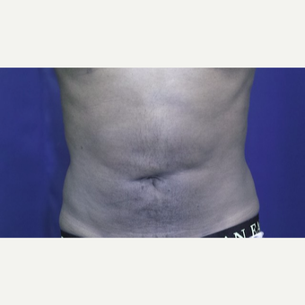 25-34 year old man treated with Tumescent Liposuction after 3148909