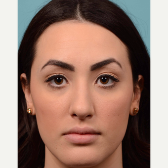 18-24 year old woman treated with Rhinoplasty after 3064800