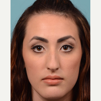 18-24 year old woman treated with Rhinoplasty before 3064800