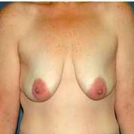 43 year old woman treated with Breast Lift with Implants before 3666102