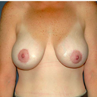 43 year old woman treated with Breast Lift with Implants after 3666102