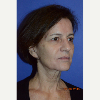 55-64 year old woman treated with Liquid Facelift before 3226763