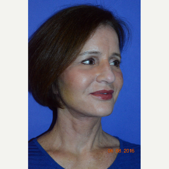 55-64 year old woman treated with Liquid Facelift after 3226763