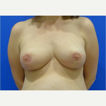 42 year old woman treated with Breast Reduction after 3727334