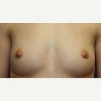 39 year old woman with a Breast Augmentation before 3103762