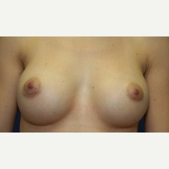 39 year old woman with a Breast Augmentation after 3103762