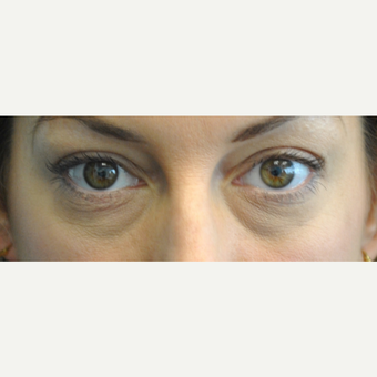 35-44 year old woman treated with Eye Bags Treatment before 3399508
