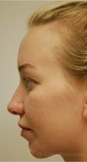 17 or under year old woman treated with Rhinoplasty before 3259229