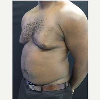 25-34 year old man treated with Male Breast Reduction before 3218530