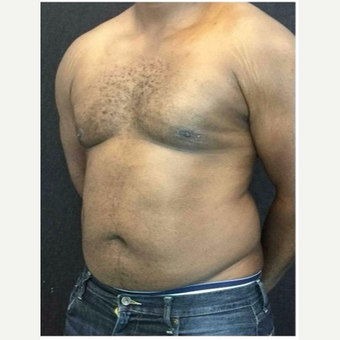 25-34 year old man treated with Male Breast Reduction after 3218530