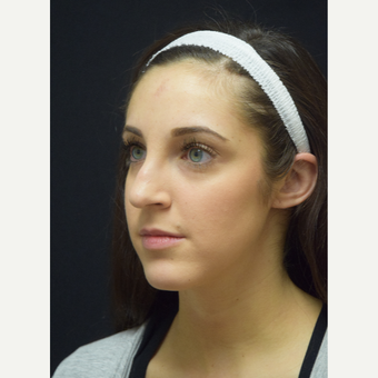 25-34 year old woman treated with Rhinoplasty before 3724338