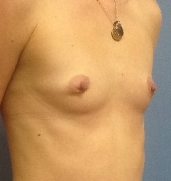 28 year old with small breasts before 1016092