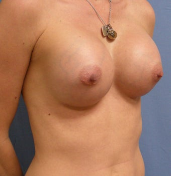 28 year old with small breasts after 1016092