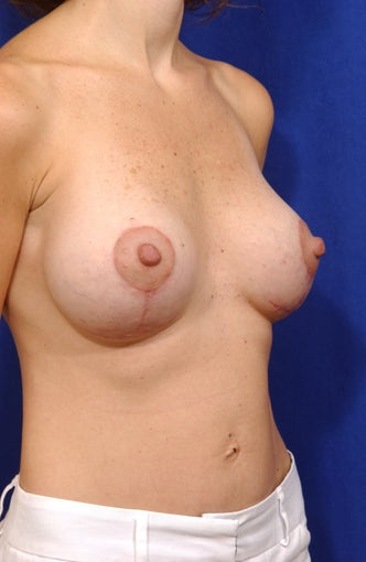 Breast Lift with Saline Implants after 57023