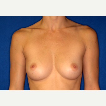 35-44 year old woman treated with Breast Augmentation before 3005844