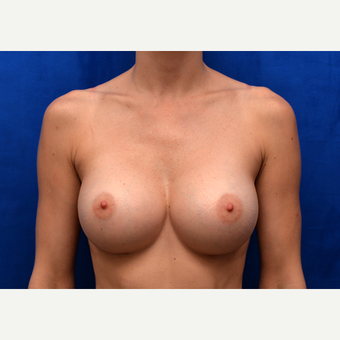 35-44 year old woman treated with Breast Augmentation after 3005844