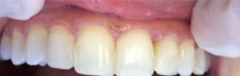 35-44 year old woman treated with Dental Bonding after 3379442