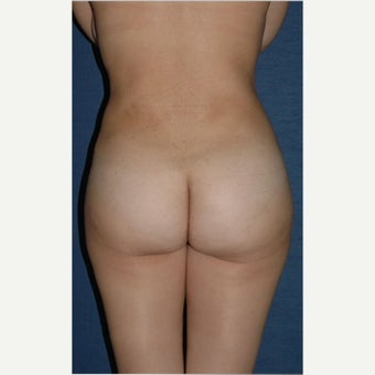 25-34 year old woman treated with Brazilian Butt Lift Revision after 2348183