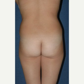 25-34 year old woman treated with Brazilian Butt Lift Revision before 2348183
