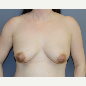 Breast Lift with Implants before 3370467