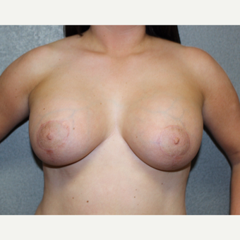 Breast Lift with Implants after 3370467