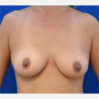 41 year old woman treated with Breast Fat Transfer before 2054212
