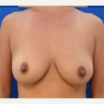 41 year old woman treated with Breast Fat Transfer after 2054212