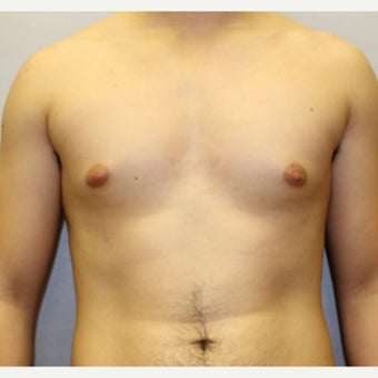 24 year old man treated with Male Breast Reduction