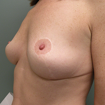 35-44 year old woman treated with Breast Implants before 3724631