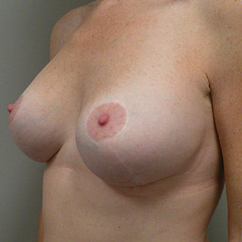 35-44 year old woman treated with Breast Implants after 3724631