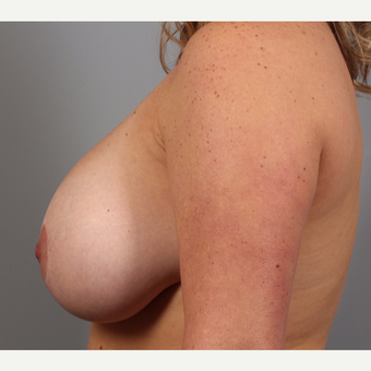 35-44 year old woman treated with Breast Implant Revision before 3588502