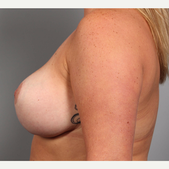 35-44 year old woman treated with Breast Implant Revision after 3588502