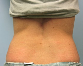 Vaser Liposuction of the Lower Back before 644880