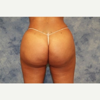 35-44 year old woman treated with Brazilian Butt Lift after 1693550