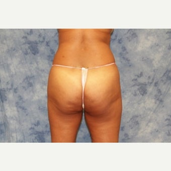 35-44 year old woman treated with Brazilian Butt Lift before 1693550