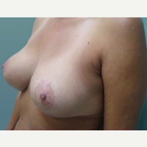 45-54 year old woman treated with Breast Lift after 3168255