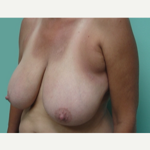 45-54 year old woman treated with Breast Lift before 3168255