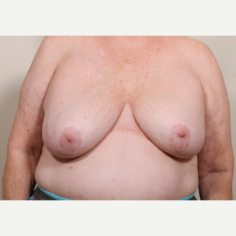 55-64 year old woman treated with Breast Reduction after 3398756