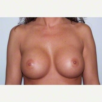 Breast Augmentation after 2259404