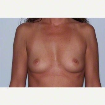 Breast Augmentation before 2259404