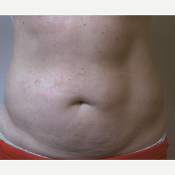 45-54 year old woman treated with CoolSculpting before 3763759