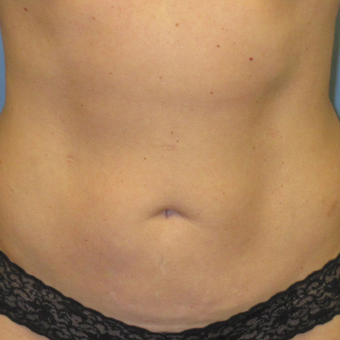 45-54 year old woman treated with CoolSculpting after 3763759